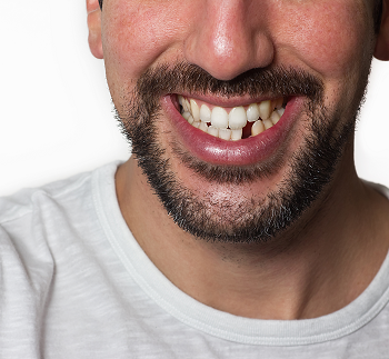 close-up of middle-aged man's smile with a missing tooth