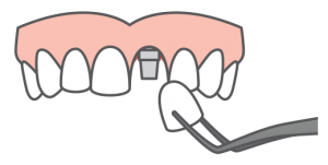 Single tooth replacement icon